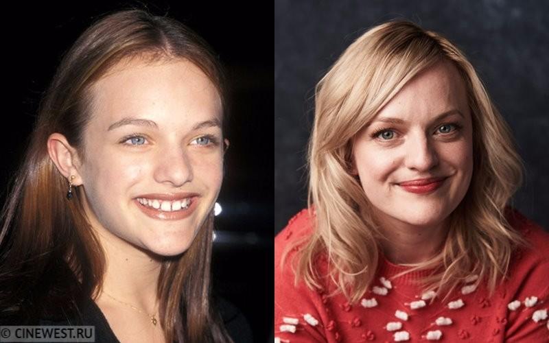 Некрасивые женщины-актрисы - Элизабет Мосс - в юности и сейчас